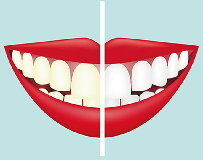 Teeth Scaling Cleaning In Nepal Dentalife Oral Concern Pvt Ltd