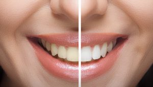 Teeth Whitening In Nepal Dentalife Oral Concern Pvt Ltd