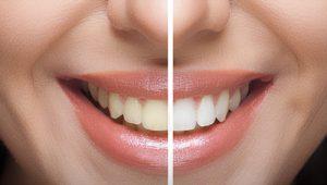 Teeth Whitening In Nepal Dentalife Oral Concern Pvt Ltd