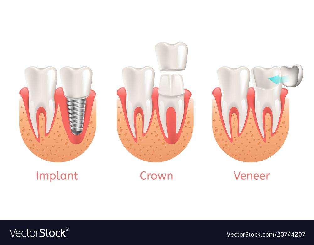 Dental Veneers In Nepal Dentalife Oral Concern Pvt Ltd